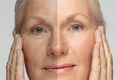 Assez Découvrez l'âge de votre peau et les façons de la rajeunir  ZS46